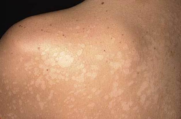 аллергия в виде пятен на лице